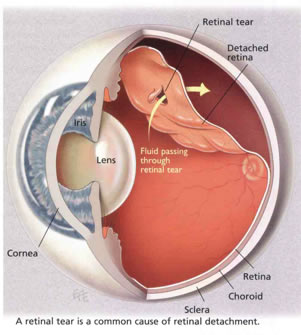 Retinal-Procedures